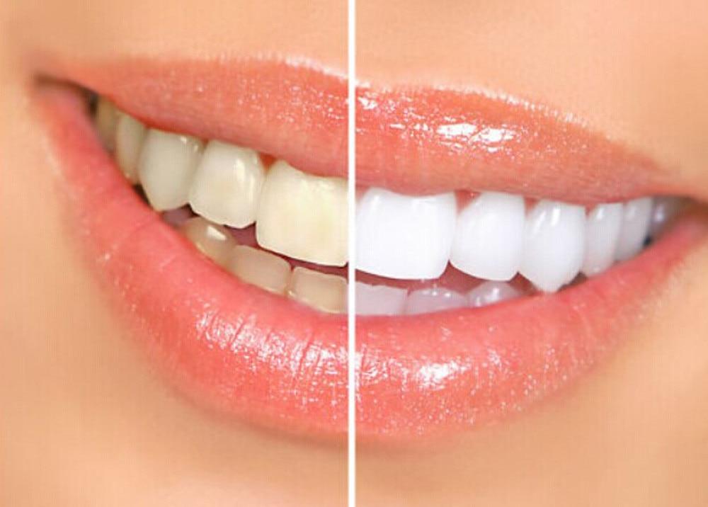 Teeth Whitening Pen White Tooth Cleaning Bleaching Dental Professional Kit Teeth Whitening Gel Pen