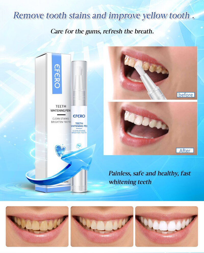 EFERO White Teeth Whitening Pen Tooth Gel Whitener Bleach Remove Plaque Stains Dental Tools Oral Hygiene Teeth Cleaning Serum