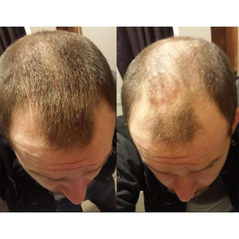 Keratin Hair Fiber Applicator Hair Building Fiber Spray Pump Styling Color Powder Extension Thinning Thickening Hair Growth 2pcs