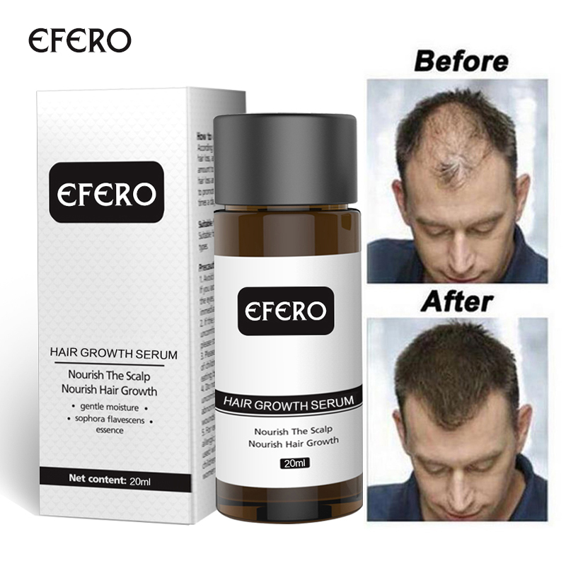 Hair Growth Essence Hair Loss Dense Hair Fast Hair Growth Oil Grow Restoration Growing Serum