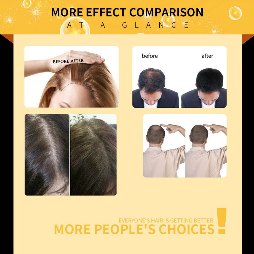 LAVDIK Ginger Fast Hair Growth Serum Essential Oil Anti Preventing Hair Lose Liquid Damaged Hair Repair Growing Women Men TSLM1
