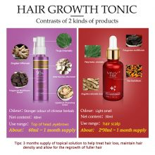 Anti Hair Loss Essence Hair Growth Treatment Oil Fast Thick Hair Eyebrows Support Natural Healthy Hair Treatment for Women
