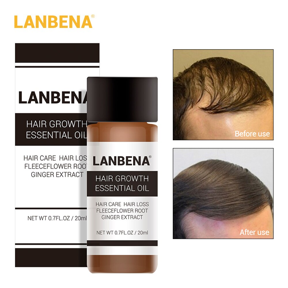 LANBENA Fast Powerful Hair Growth Essence Products Essential Oil Treatment Preventing Hair Loss Hair Care Andrea 20ml !