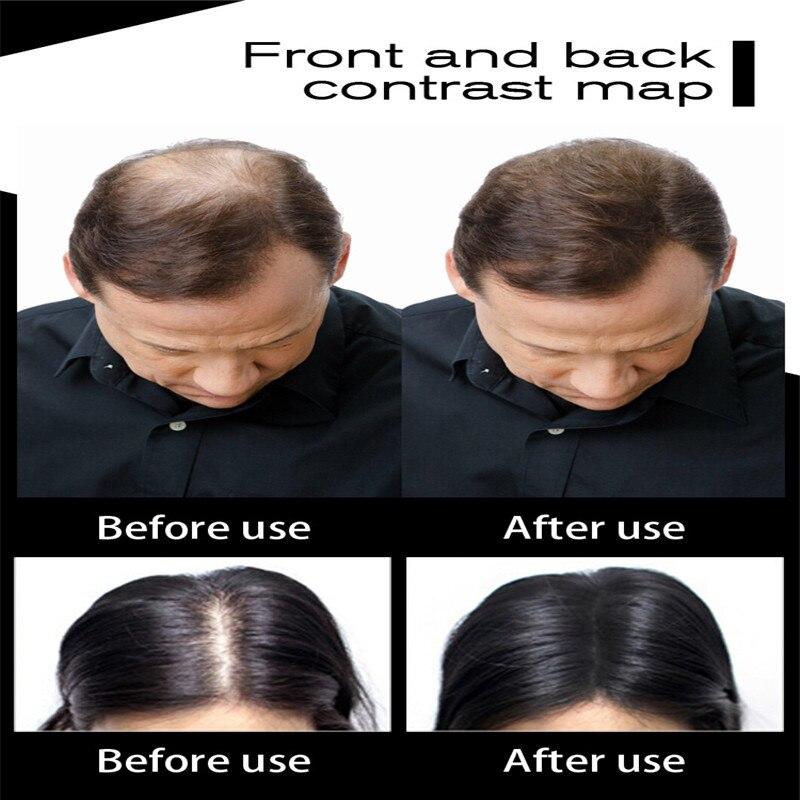 Regrowth Powders Hair Fibers Keratin Thickening Spray Hair Building Multi-colors Hair Loss Hair Regrowth Powders Hot Instant Wig