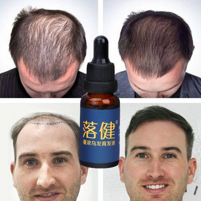 Hair Growth Essence Oil Anti Hair Loss Treatment for Beard Growth Oil Repair Damage Hair Roots Hair Care Products Hair Tonic