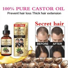 Oriental Oils Hair Nutrition Hair Loss Treatment Solutions Product Fast Hair Growth Remedy Essence Oil Hair Regrowth Products