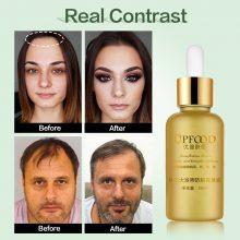Hair Growth Essence Oil Anti Hair Loss Treatment for Hair Growth Hair Care Anti Preventing Hair Loss Products Hair Tonic