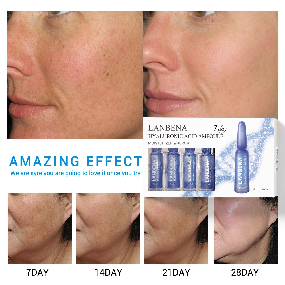 LANBENA Face Serum Hyaluronic Acid Vitamina C 24K Gold Retinol Anti-Aging Wrinkle Moisturizing Whitening Firming Acne Treatment