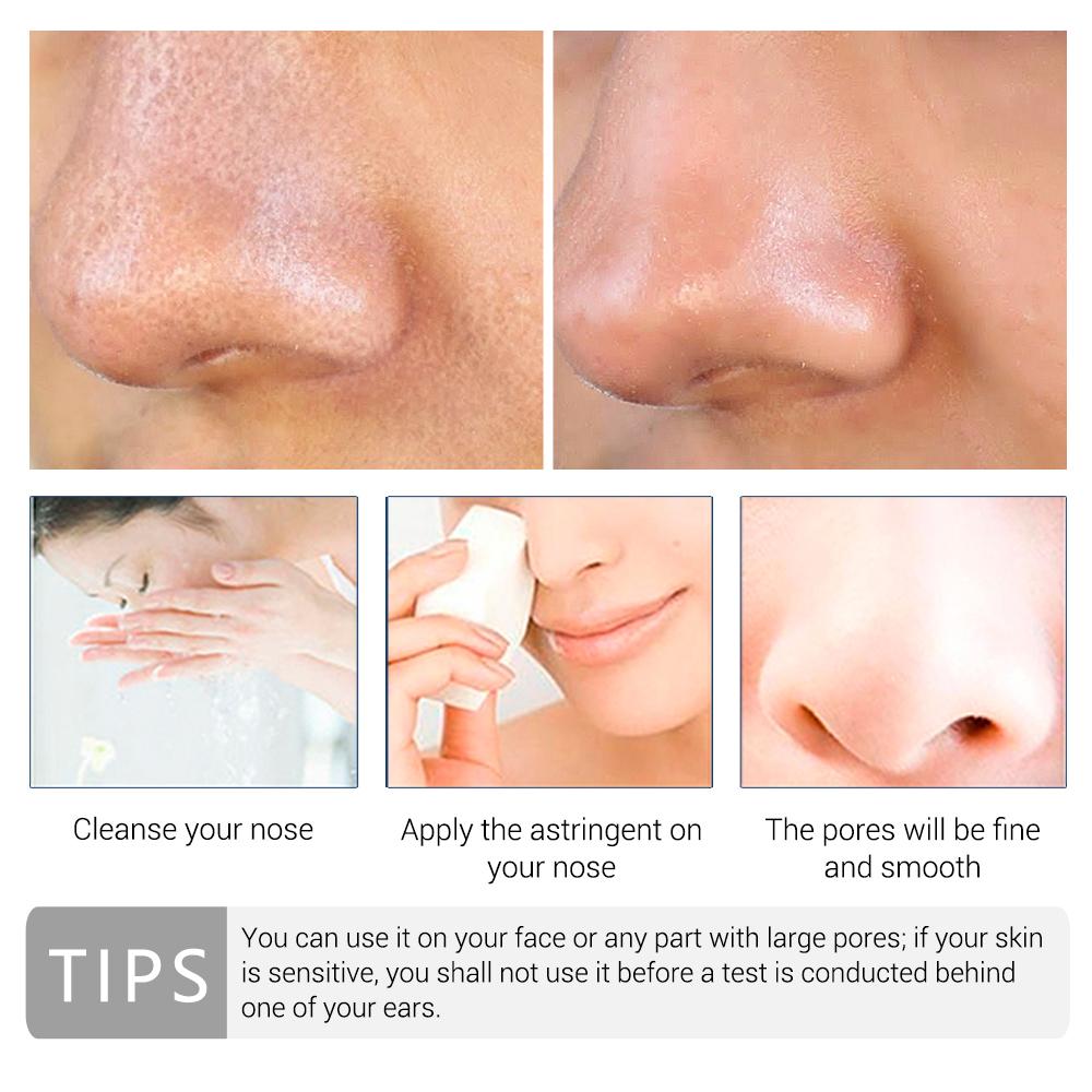 LANBENA Pore Treatment Essence Nose Blackhead Remover Acne Treatment Shrink Pores Skin Firming Face Serum Moisturizing Skin Care