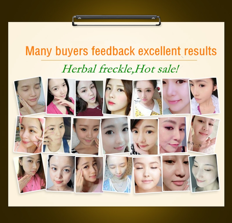 Dimollaure 50g pure 99% Kojic Acid powder face care whitening cream remove Freckle melasma Acne Spots pigment sunburn Melanin