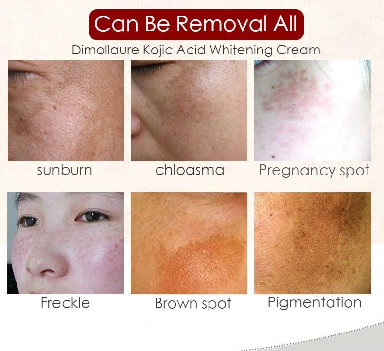 Dimollaure Kojic Acid whitening cream 30g Retinol Wrinkle removal Freckle melasma Acne scar pigment age spot melanin sun spot