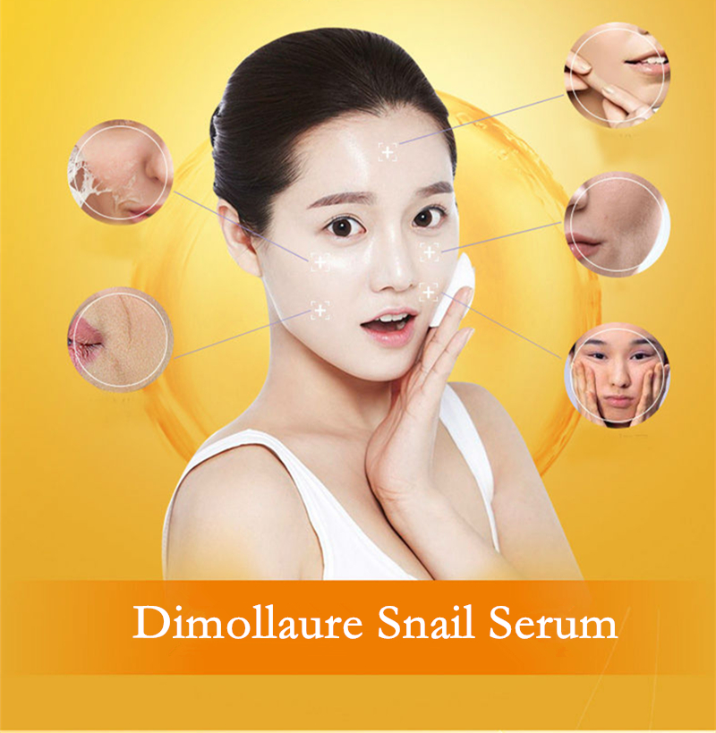 Dimollaure Strong whitening cream + Hyaluronic Acid serum Moisturizing Remove Freckle melasma pigment Melanin sunburn face care