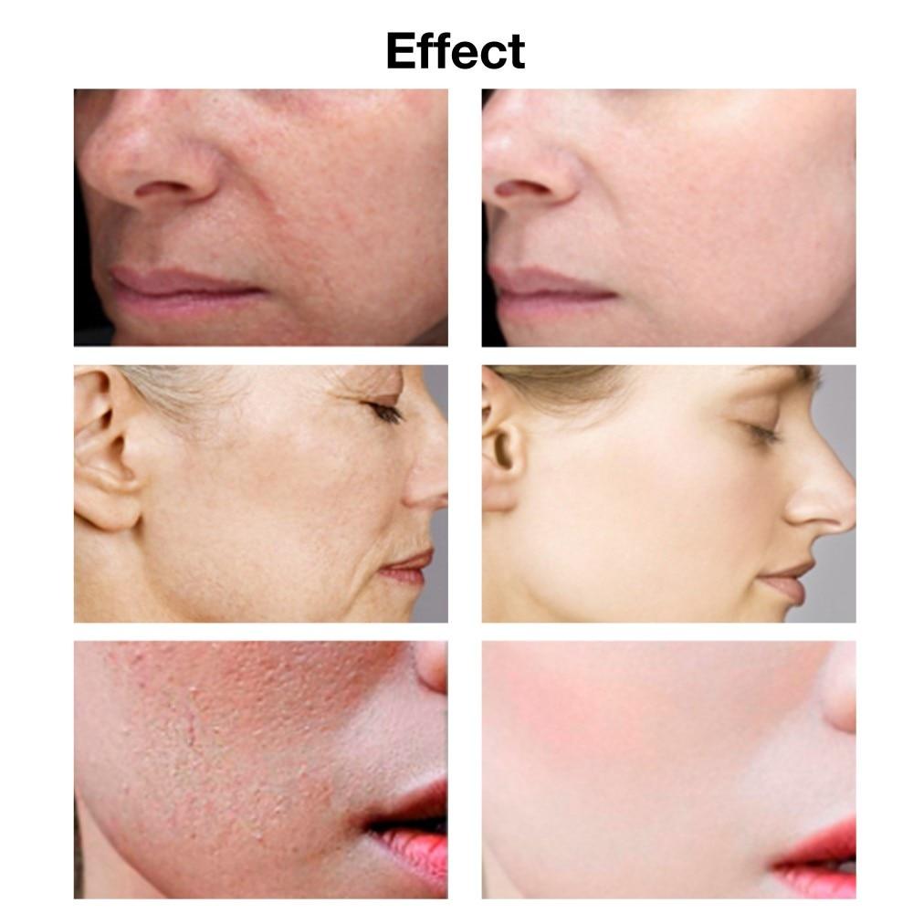 VIBRANT GLAMOUR Hyaluronic Acid Face Serum Anti-Aging Shrink Pore Whitening Moisturizing Essence Face Cream Dry Skin Care 15ml