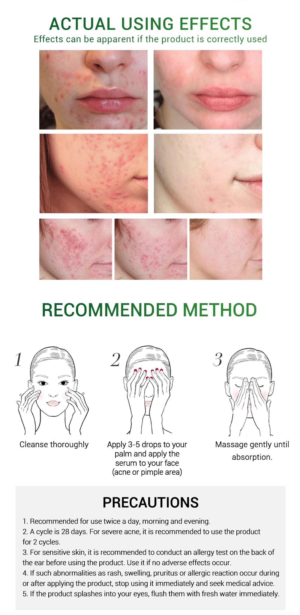BREYLEE Acne Pimple Patch Face Mask Skin Care Acne Treatment Serum Face Cream Acne Cream Essence Sheet Mask Facial Care Tools