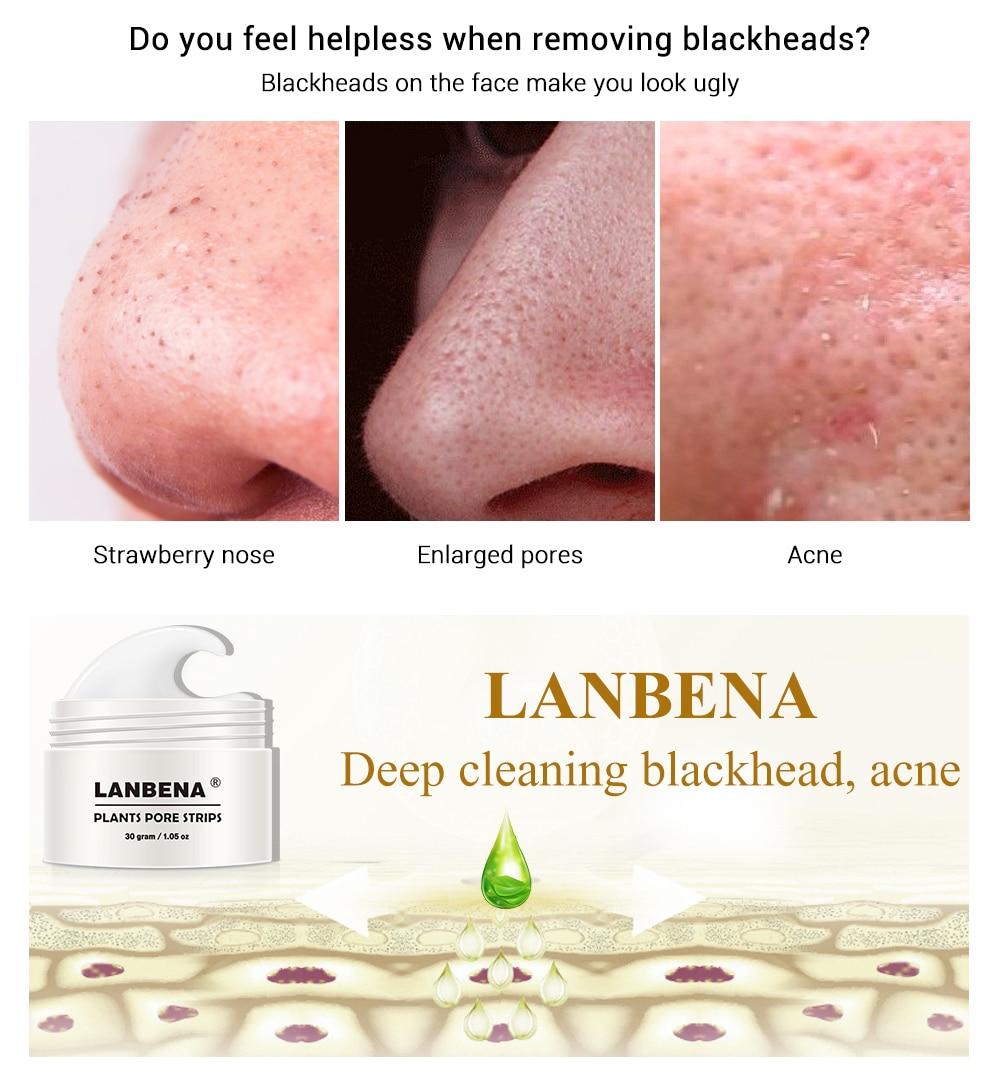 New LANBENA Unisex Blackhead Remover Nose Face Mask Pore Strip Black Mask Peeling Acne Treatment Black Deep Cleansing Skin Care