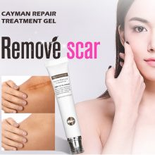 VIBRANT GLAMOUR Repair Scar Removal Cream Acne Scars Gel Stretch Marks Surgical Scar Burn For Body Pigmentation Corrector Care