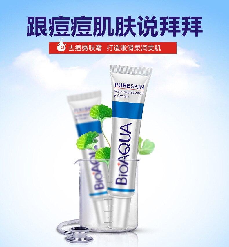 Bioaqua 30g Acne Treatment Blackhead Remova Anti Acne Cream Oil Control Shrink Pores Acne Scar Remove Face Care Whitening