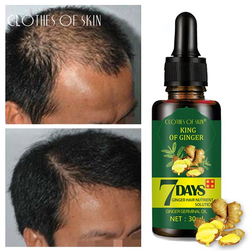 7 Days Ginger Hair Growth Essence Hairdressing Hair Product Oil Serum Dry and Damaged Treatment 30 ml Deeply Nutrition Care