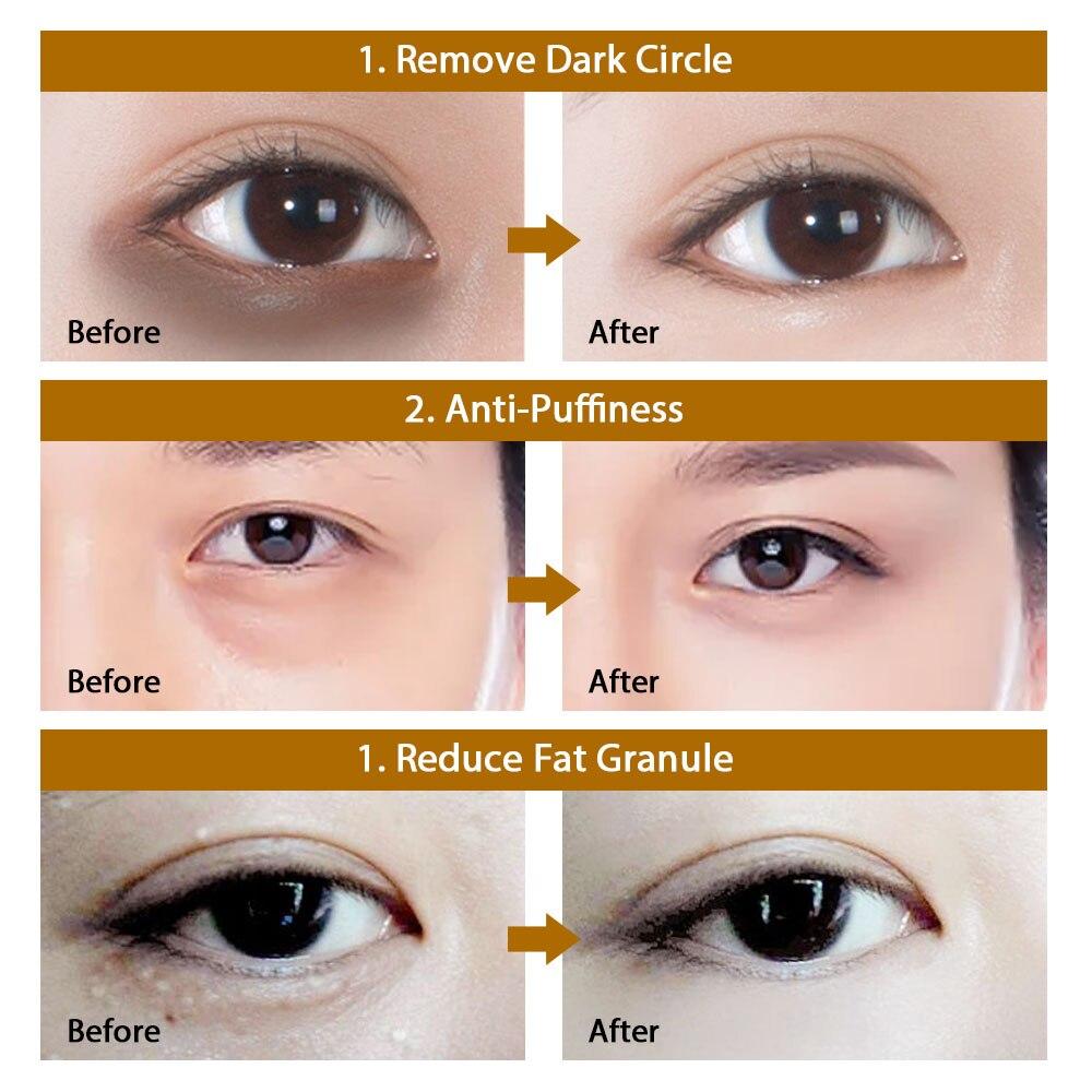 60pcs Hyaluronic Acid Repair Eye Patches Remove Dark Circles Moisturizing Eye Mask Crystal Collagen Gel Mask Eye Skin Care