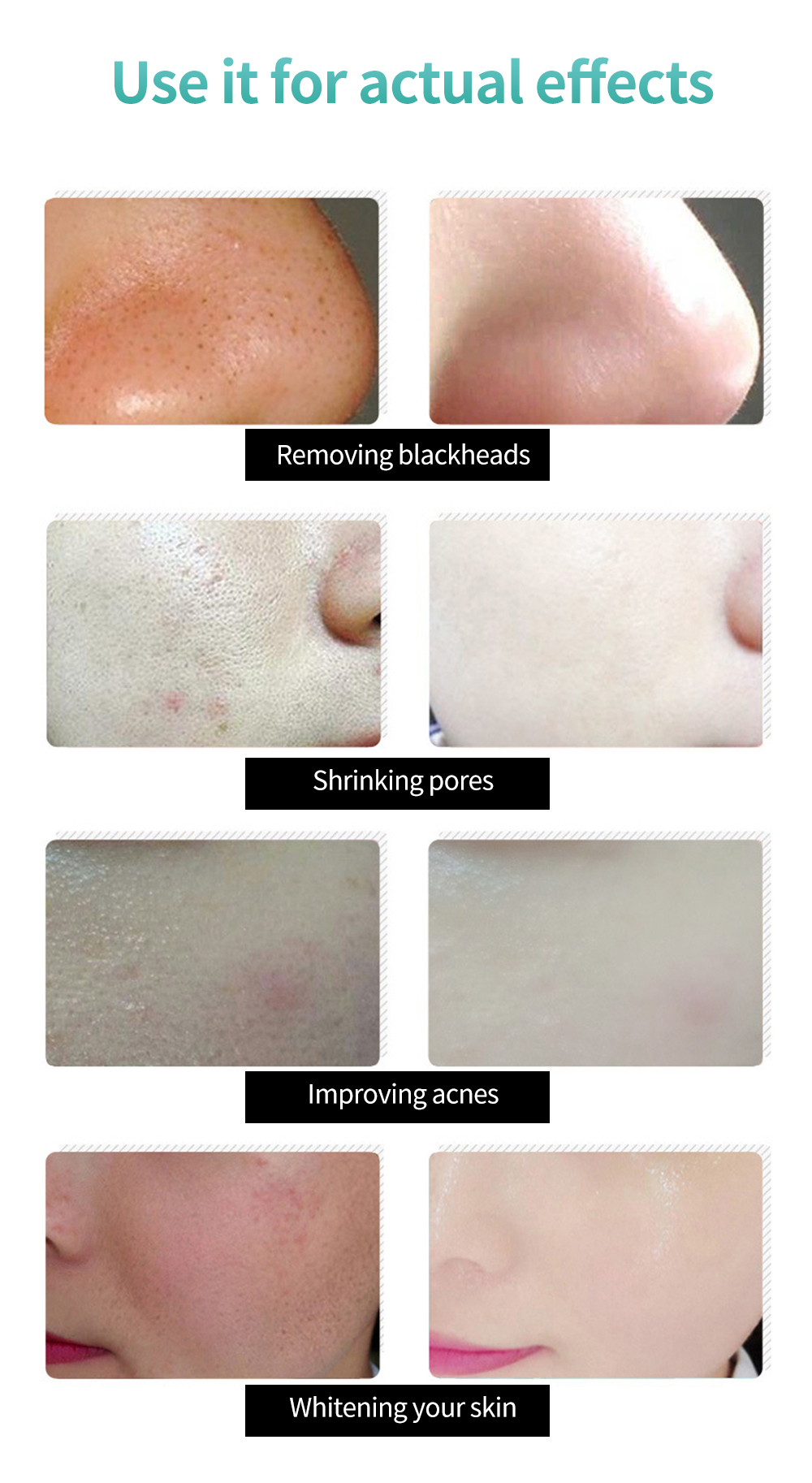 Korea Blackhead Remover Nose Black Mask Face Care Mud Acne Treatment Peel Off Mask Pore Strip Peel Mask Oil Control Skin Care