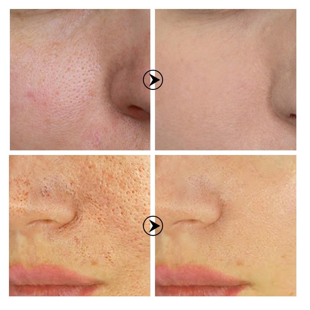 BREYLEE Shrink Pores Serum Pore Tightens Refining Moisturizing Essence Whitening Anti-aging Oil Control Facial Essence Skin Care